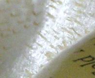 Biore strip closeup. It's a forest of blackheads.