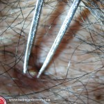 Removing massive chest blackhead with tweezers.